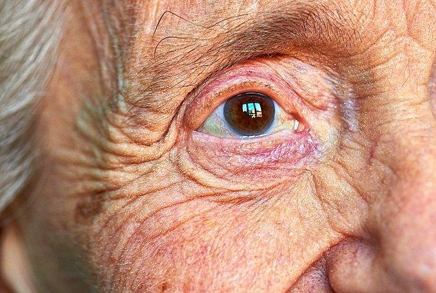 Alzheimer hastalığı, hem dünya hem de Türkiye nüfusunun yaşlanmasıyla birçok kişide görülebiliyor.