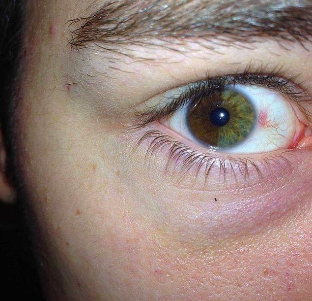 """2. """"Sağ gözüm dikey olarak bir tarafı kahverengi, diğer tarafı ise yeşil renkte. Bebekken mavi ve kahverengiydi."""""""