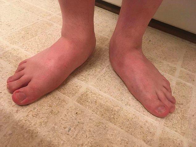 3. Düz taban ayak terimini tam anlamıyla örneklendiren bu ayaklar.