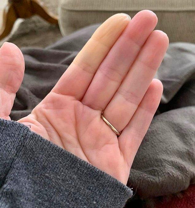 10. Garip bir hastalığı olan bu kadının, üşüdüğünde bazı el veya ayak parmaklarında kan dolaşımını yitirdiğini söylüyor.