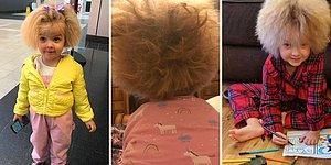 У 6-летней девочки тот же синдром, что у Эйнштейна, из-за чего ее волосы невозможно расчесать