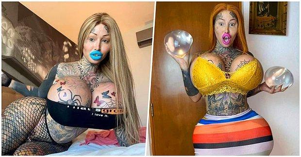 Estetik Operasyonun Yanlış Sonuçlanmasının Ardından Dünyanın En Şişman Vajinasına Sahip Olan Kadın!