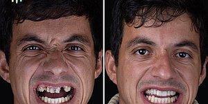20 преображений от бразильского дантиста, который лечит зубы бедняков бесплатно